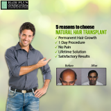 Natural Hair Transplant5